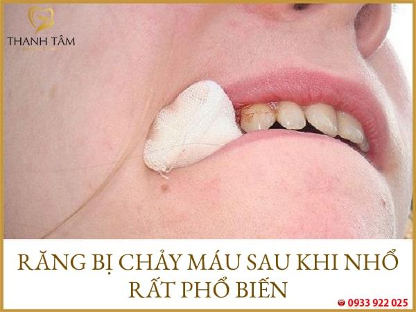 nhổ răng bị chảy máu hoài