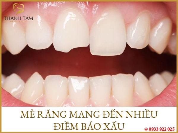 mẻ răng