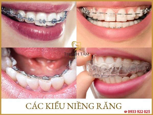 các kiểu niềng răng