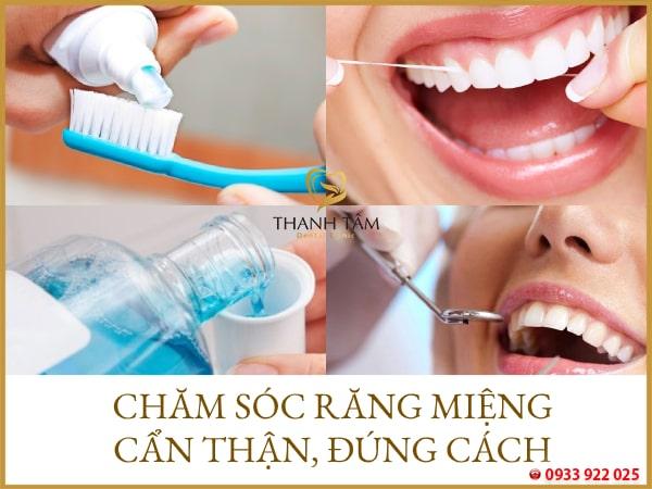 Chăm sóc răng miệng cẩn thận