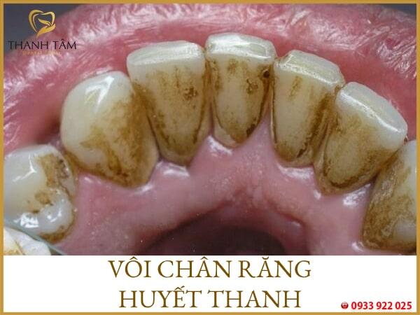 Cao răng huyết thanh