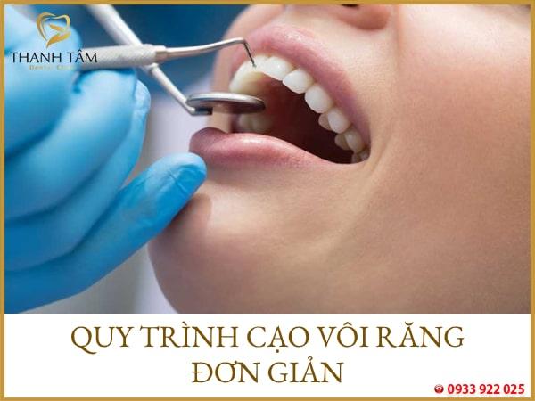 Vôi chân răng