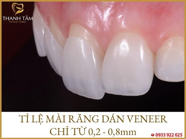 Tỉ lệ mài răng thấp