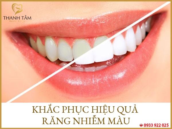 Khắc phục các khuyết điểm trên răng
