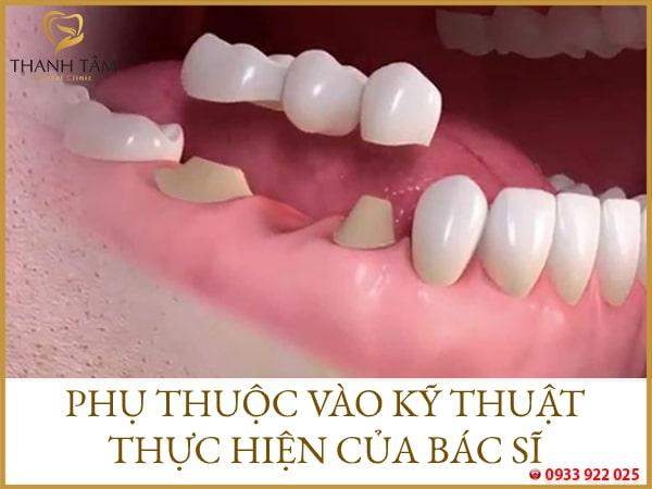 Làm cầu răng sứ sử dụng được bao lâu