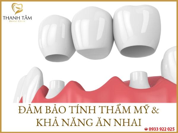 Là giải pháp phục hình khuyết điểm mất răng hiệu quả