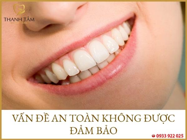 tự làm trắng răng tại nhà