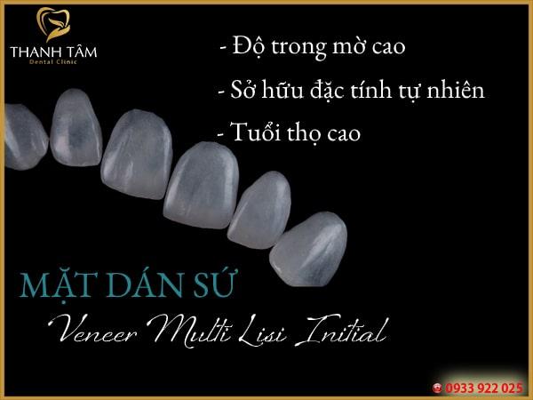 Miếng dán sứ răng