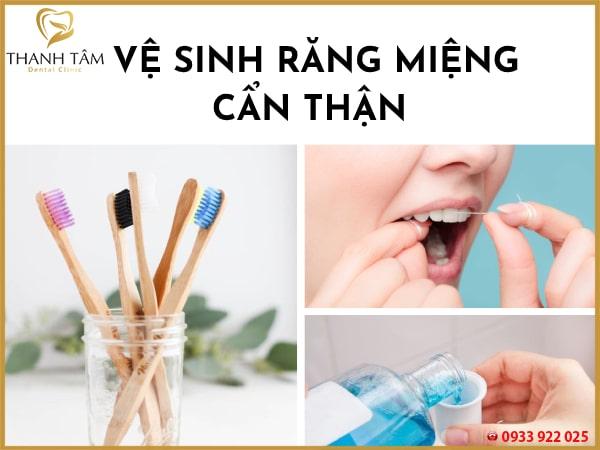 Chăm sóc răng cẩn thận