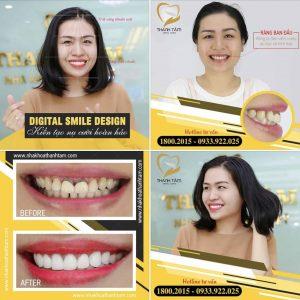 Chị Trần Minh Châu làm răng sứ Cercon HT răng đen viền nướu