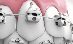 Niềng răng bao gồm các giai đoạn nào