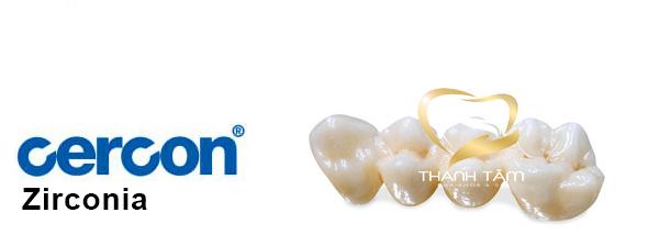 Răng sứ Cercon chất lượng
