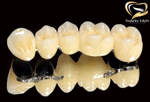 Răng sứ kim loại Mỹ