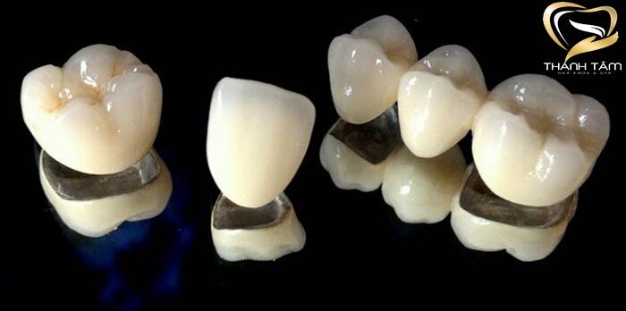 Răng Sứ Titan Vita