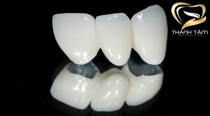 Răng sứ Vita