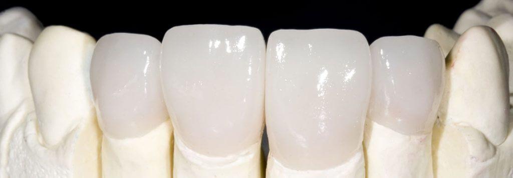 Răng sứ Zirconia chính hãng của Đức