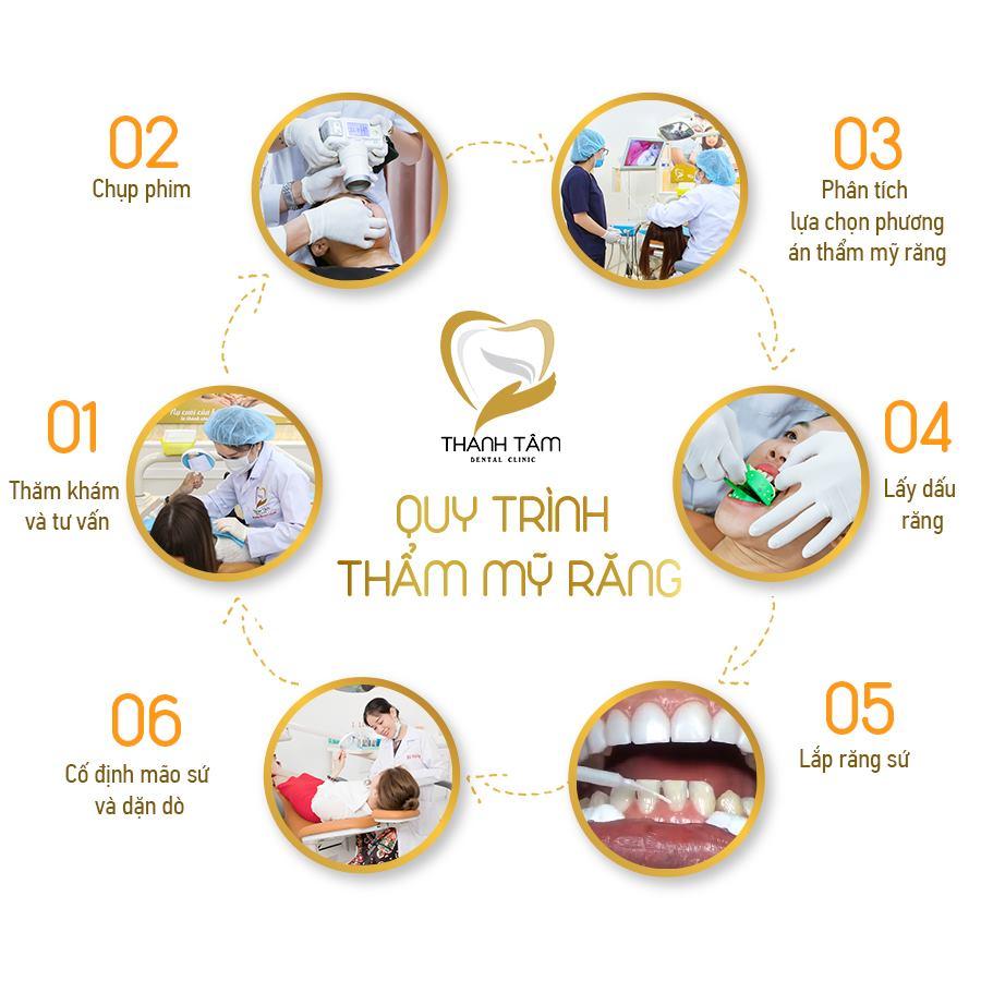 Quy trình bọc răng sứ zirconia