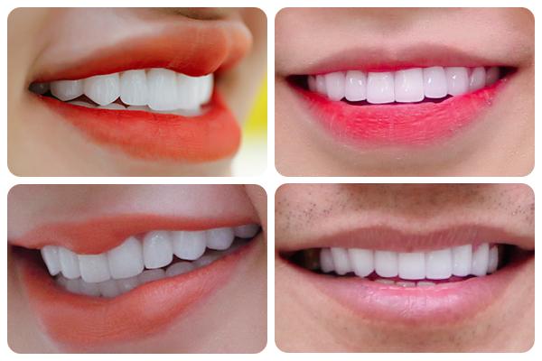 Răng sứ Zolid - Chất lượng thẩm mỹ