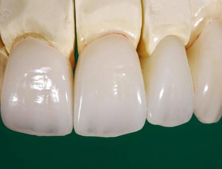 Răng sứ Zolid - Dòng răng toàn sứ cao cấp