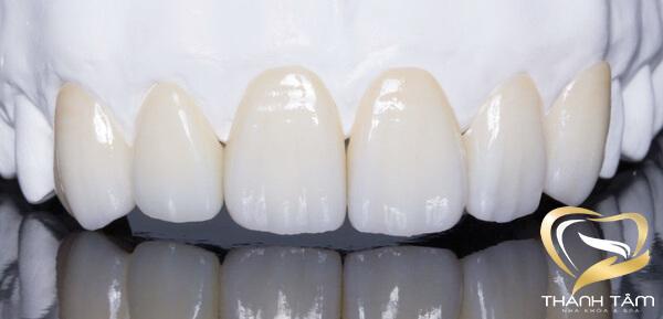 Răng toàn sứ Cercon HT chất lượng