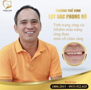 Anh Trương Thế Vinh bọc răng sứ Cercon HT điều trị răng thưa