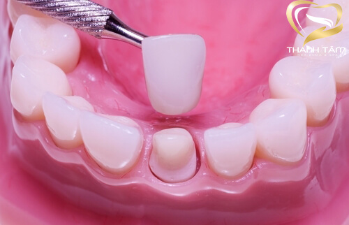 Thẩm mỹ răng sứ hiệu quả