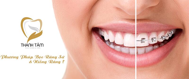 Góc Tư Vấn: Bọc Răng Sứ Hay Niềng Răng ?