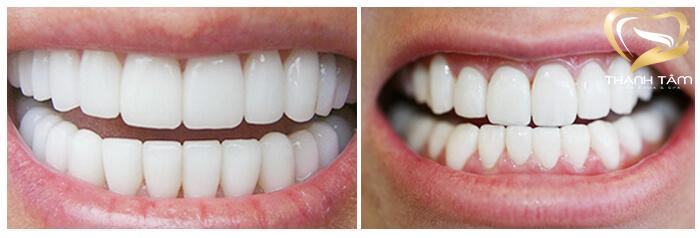 Thẩm mỹ răng sứ giá bao nhiêu