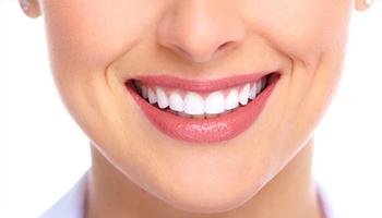 Những lưu ý khách hàng không nên bỏ qua khi Thẩm mỹ Răng sứ
