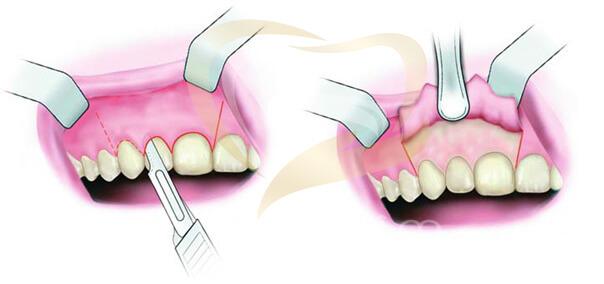 Cắt chóp răng