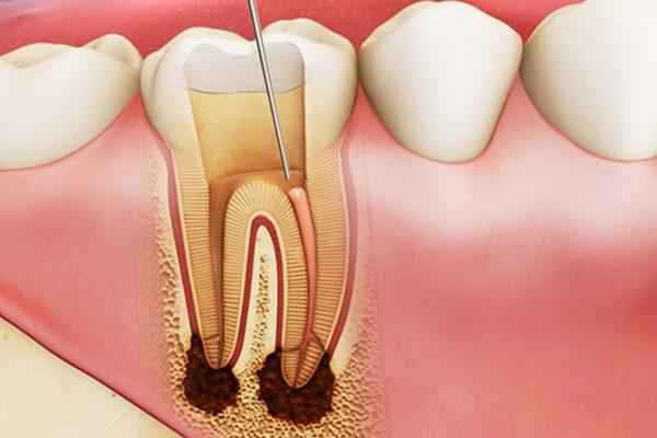 Điều trị tuỷ cho răng sâu