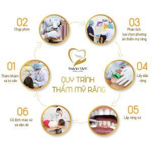 Quy trình bọc răng sứ tại Phan Thiết