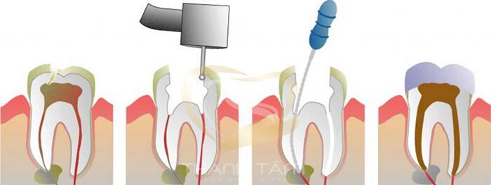 Quy trình điều trị tuỷ hút tuỷ tại Thanh Tâm