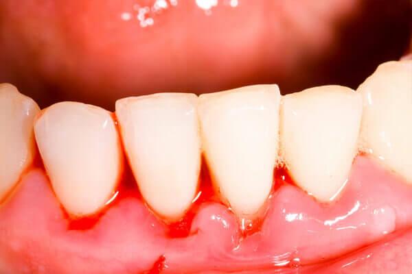 điều trị răng rụng