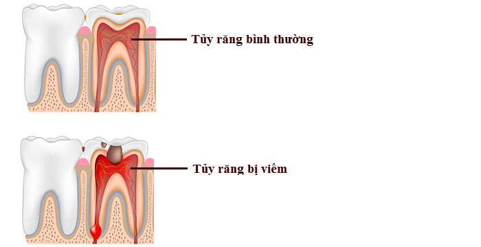 Viêm tủy làm hỏng răng gốc