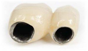 Các loại răng sứ - Răng sứ sườn kim loại Titan