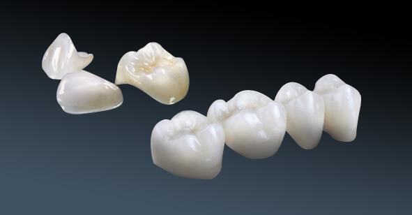 Chọn loại răng sứ tốt - Răng sứ Cercon