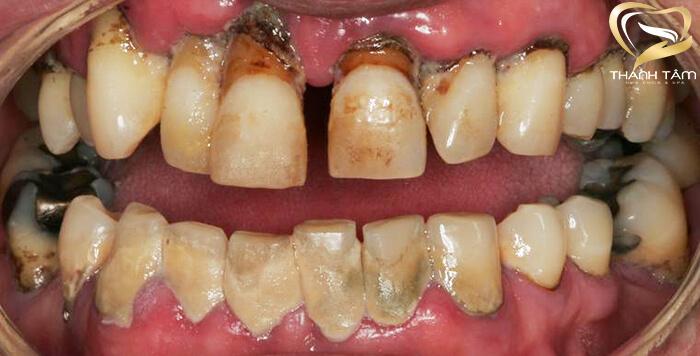 giá bọc răng sứ cho hàm răng bị xỉn màu