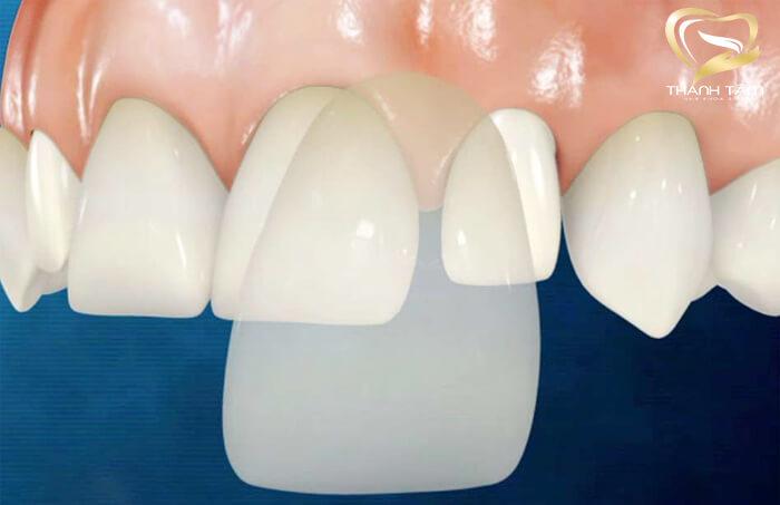 Thẩm mỹ răng sứ không mài nhỏ răng