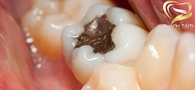 trám răng thẩm mỹ bằng vật liệu amalgam