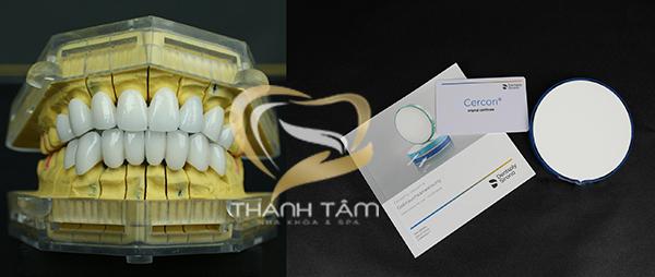 Phôi răng sứ khắc phục răng sâu hiệu quả