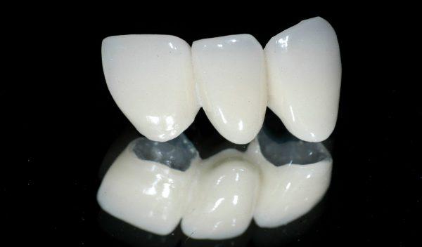 Thẩm mỹ răng sứ Titan