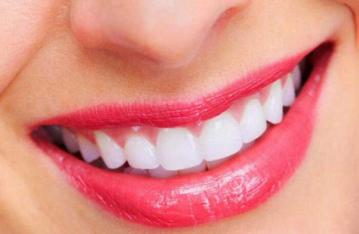 Chăm sóc răng miệng sau tẩy trắng