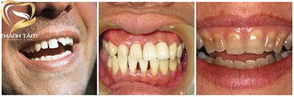 bọc răng sứ khắc phục khuyết điểm về răng