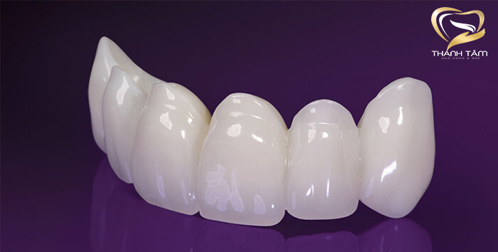 Làm răng sứ nguyên hàm giá bao nhiêu
