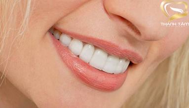 chi phí phủ răng