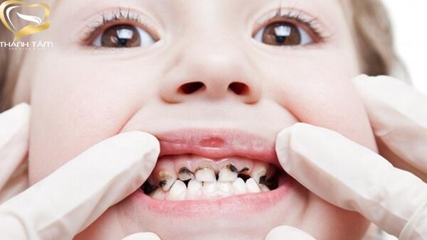 Bệnh lý sâu răng ở trẻ em