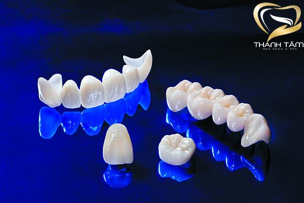 Răng sứ Cercon khôi phục khuyết điểm của răng
