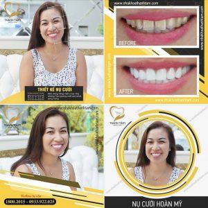 Chị Diễm Nguyễn bọc 27 răng sứ Cercon XT