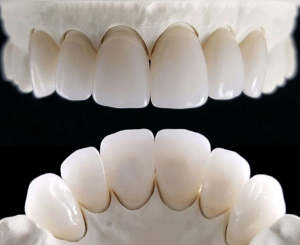 Răng sứ cercon XT thẩm mỹ cao